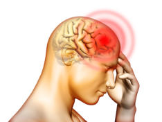 tension headache | summit headache and neurologic institute, Skeleton